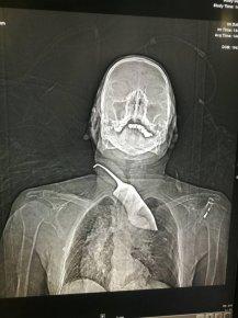 尖刀插入脖颈,老人命悬一线 医生临危受命,5分钟拔出刀
